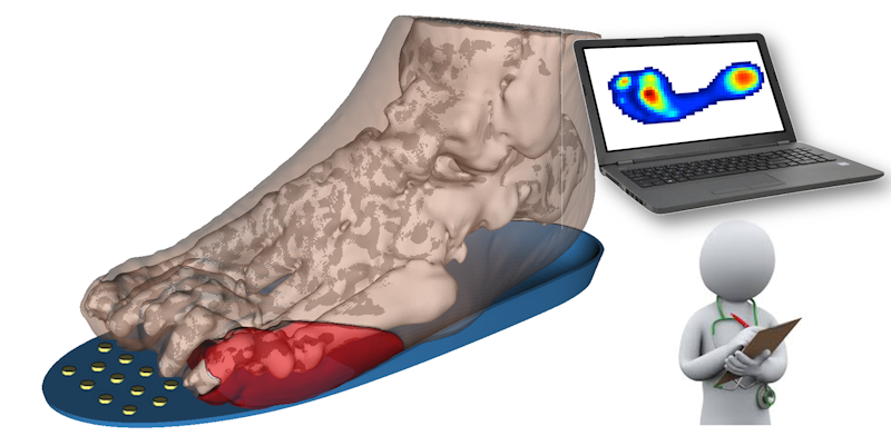 Shear Load Inductive Plantar Sensing for assessment and treatment of Diabetic Foot Disease