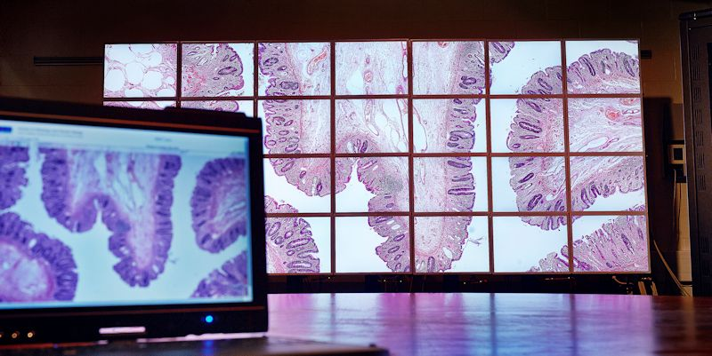 Researchers in the School of Computing win best paper award for work on digital pathology