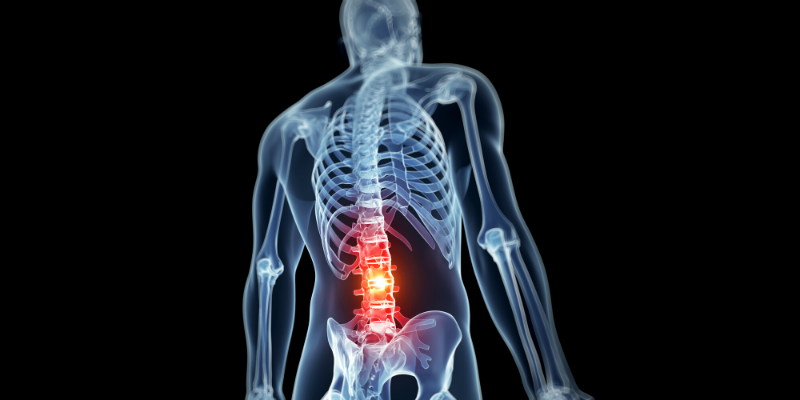 Skeleton representation that shows a lower back pain